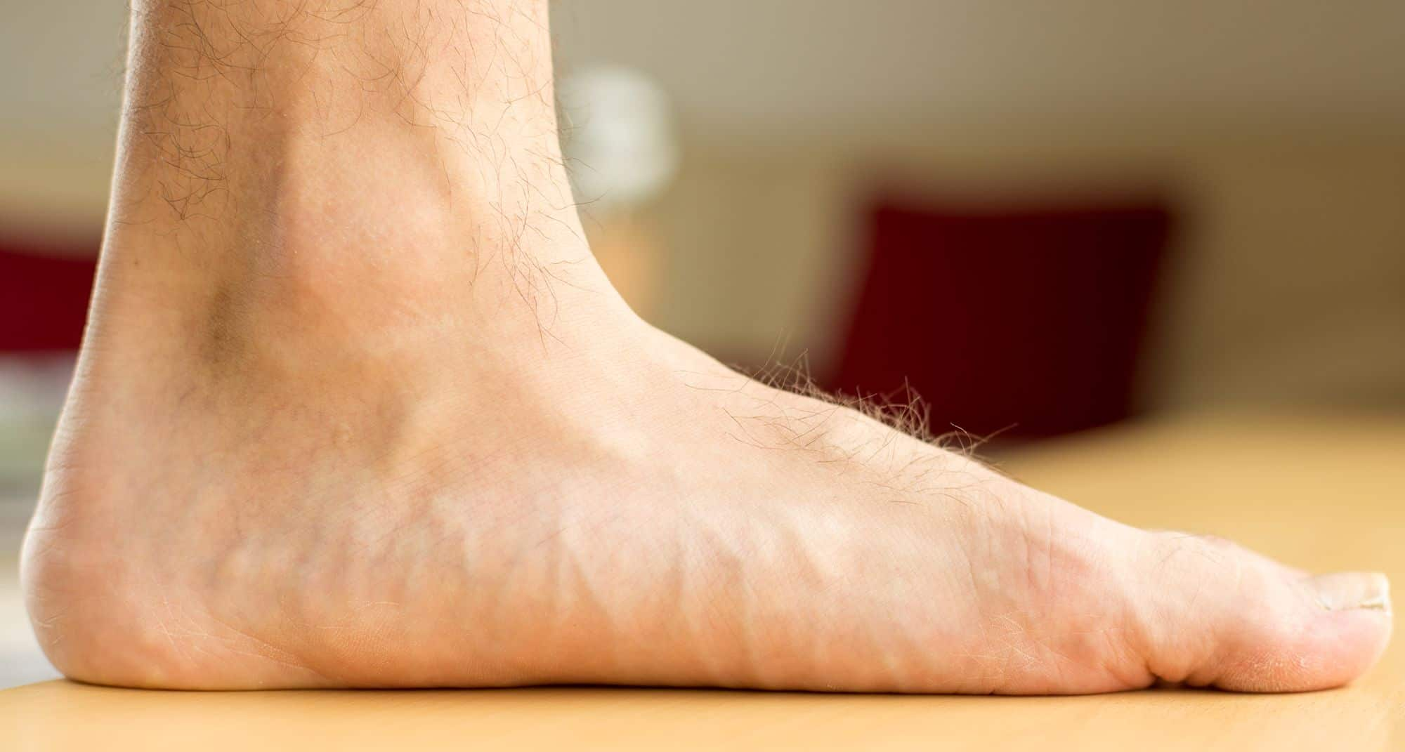 Pes Planus Causes Amp Treatment For Flat Feet Limbionics