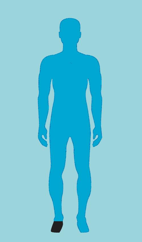Partial Foot Limbionics