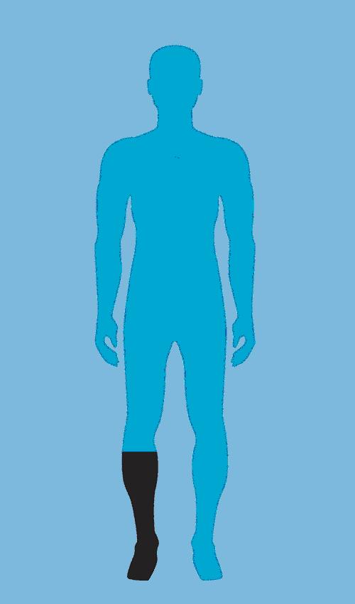 Lower Extremity Prosthetics Knee